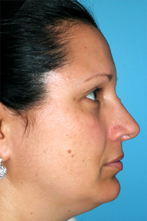 Richard Davis, MD Primary Rhinoplasty: Patient 10, Profile View, Post-Op