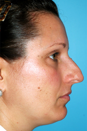 Richard Davis, MD Primary Rhinoplasty: Patient 10, Profile View, Pre-Op