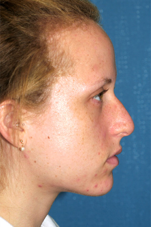 Richard Davis, MD Primary Rhinoplasty: Patient 11, Profile View, Pre-Op