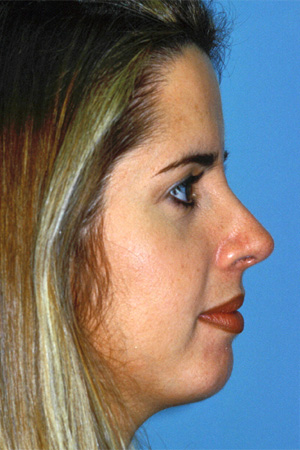 Richard Davis, MD Primary Rhinoplasty: Patient 12, Profile View, Post-Op