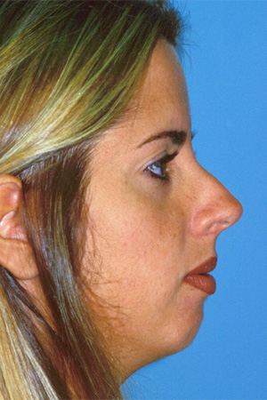 Richard Davis, MD Primary Rhinoplasty: Patient 12, Profile View, Pre-Op