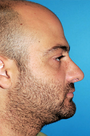 Richard Davis, MD Primary Rhinoplasty: Patient 13, Profile View, Post-Op