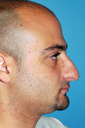 Richard Davis, MD Primary Rhinoplasty: Patient 13, Profile View, Pre-Op