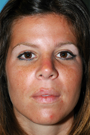 Richard Davis, MD Primary Rhinoplasty: Patient 14, Front View, Post-Op