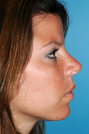 Richard Davis, MD Primary Rhinoplasty: Patient 14, Profile View, Post-Op