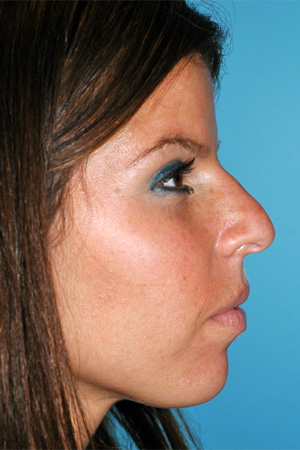 Richard Davis, MD Primary Rhinoplasty: Patient 14, Profile View, Pre-Op