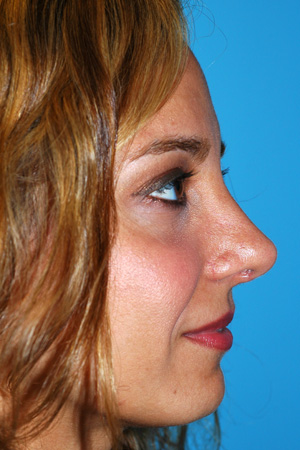 Richard Davis, MD Primary Rhinoplasty: Patient 15, Profile View, Post-Op