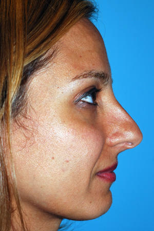 Richard Davis, MD Primary Rhinoplasty: Patient 15, Profile View, Pre-Op