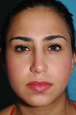 Richard Davis, MD Primary Rhinoplasty: Patient 16, Front View, Post-Op