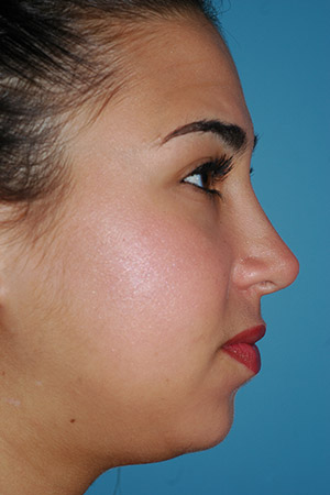 Richard Davis, MD Primary Rhinoplasty: Patient 16, Profile View, Post-Op