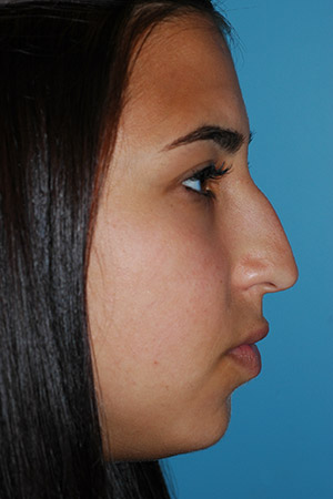 Richard Davis, MD Primary Rhinoplasty: Patient 16, Profile View, Pre-Op