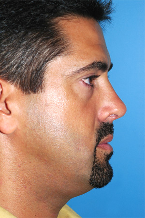 Richard Davis, MD Primary Rhinoplasty: Patient 1, Profile View, Post-Op