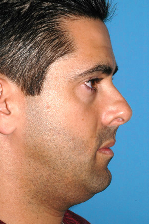 Richard Davis, MD Primary Rhinoplasty: Patient 1, Profile View, Pre-Op