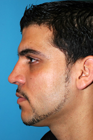 Richard Davis, MD Primary Rhinoplasty: Patient 2, Profile View, Post-Op