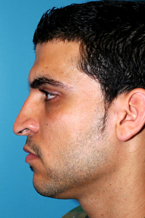 Richard Davis, MD Primary Rhinoplasty: Patient 2, Profile View, Pre-Op
