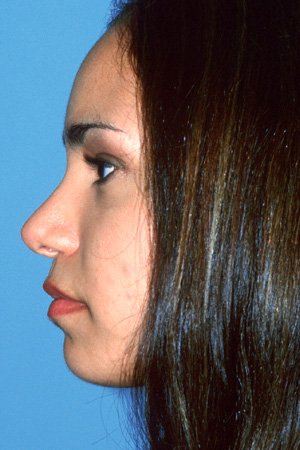 Richard Davis, MD Primary Rhinoplasty: Patient 3, Profile View, Post-Op