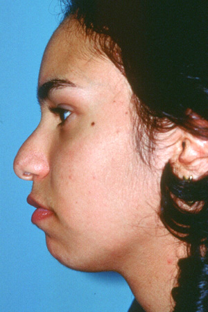 Richard Davis, MD Primary Rhinoplasty: Patient 3, Profile View, Pre-Op