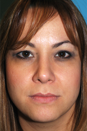 Richard Davis, MD Primary Rhinoplasty: Patient 4, Front View, Post-Op