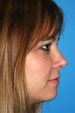 Richard Davis, MD Primary Rhinoplasty: Patient 4, Profile View, Post-Op