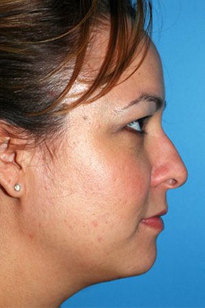 Richard Davis, MD Primary Rhinoplasty: Patient 4, Profile View, Pre-Op