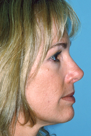 Richard Davis, MD Primary Rhinoplasty: Patient 6, Profile View, Post-Op