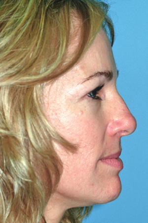 Richard Davis, MD Primary Rhinoplasty: Patient 6, Profile View, Pre-Op