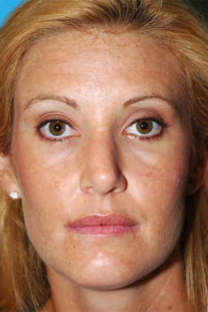 Richard Davis, MD Primary Rhinoplasty: Patient 8, Front View, Post-Op