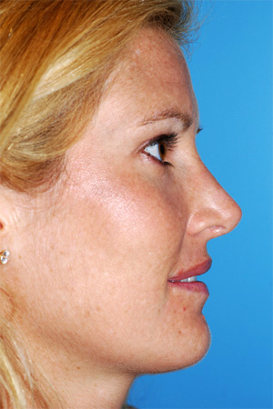 Richard Davis, MD Primary Rhinoplasty: Patient 8, Profile View, Post-Op
