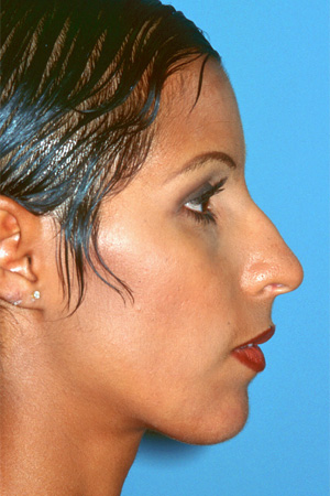 Richard Davis, MD Primary Rhinoplasty: Patient 9, Profile View, Pre-Op