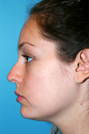Richard Davis, MD Revision Rhinoplasty: Patient 1, Profile View, Pre-Op