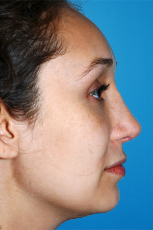 Richard Davis, MD Revision Rhinoplasty: Patient 2, Profile View, Post-Op