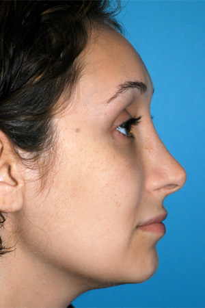 Richard Davis, MD Revision Rhinoplasty: Patient 2, Profile View, Pre-Op