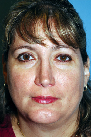 Richard Davis, MD Revision Rhinoplasty: Patient 3, Front View, Post-Op