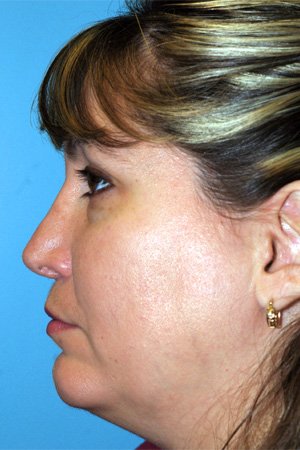Richard Davis, MD Revision Rhinoplasty: Patient 3, Profile View, Post-Op