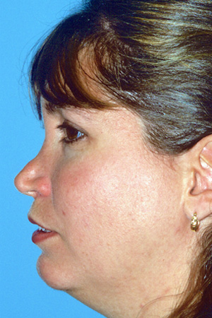 Richard Davis, MD Revision Rhinoplasty: Patient 3, Profile View, Pre-Op
