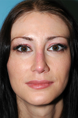 Richard Davis, MD Revision Rhinoplasty: Patient 4, Front View, Post-Op