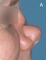 Cocaine Nose Deformity - Before Surgery