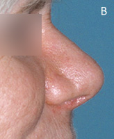 Cocaine Nose Deformity - After Surgery