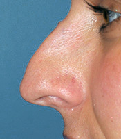Tension Nose Deformity with Pollybeak and Overprojected Tip