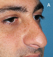 Caudal Excess Nasal Deformity - Before Surgery