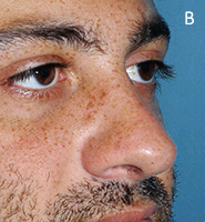 Caudal Excess Nasal Deformity - After Tongue-in-Groove Setback Procedure